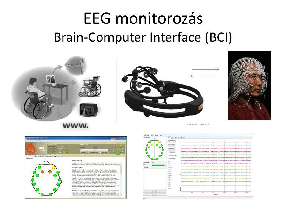 EEG monitorozás Brain-Computer Interface (BCI)