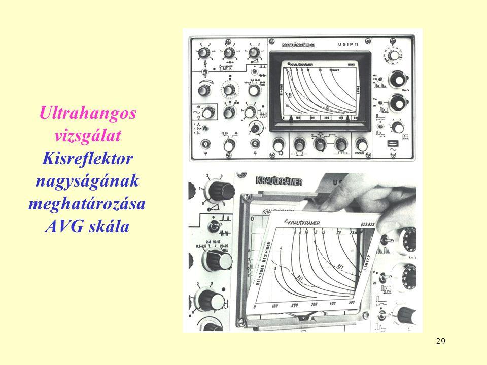 Ultrahangos vizsgálat Kisreflektor nagyságának meghatározása AVG skála