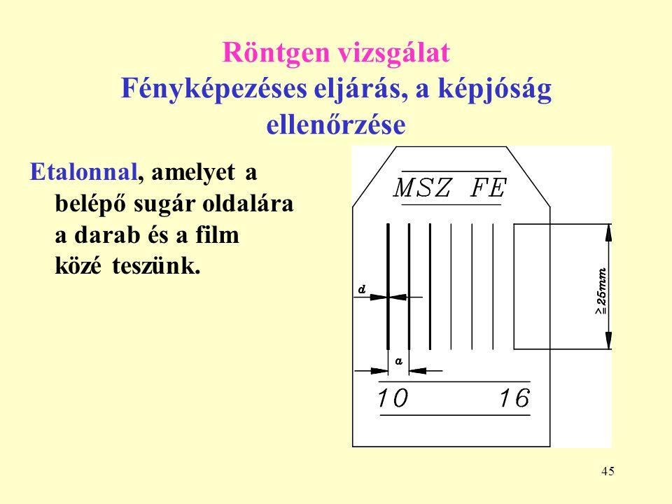 Röntgen vizsgálat Fényképezéses eljárás, a képjóság ellenőrzése