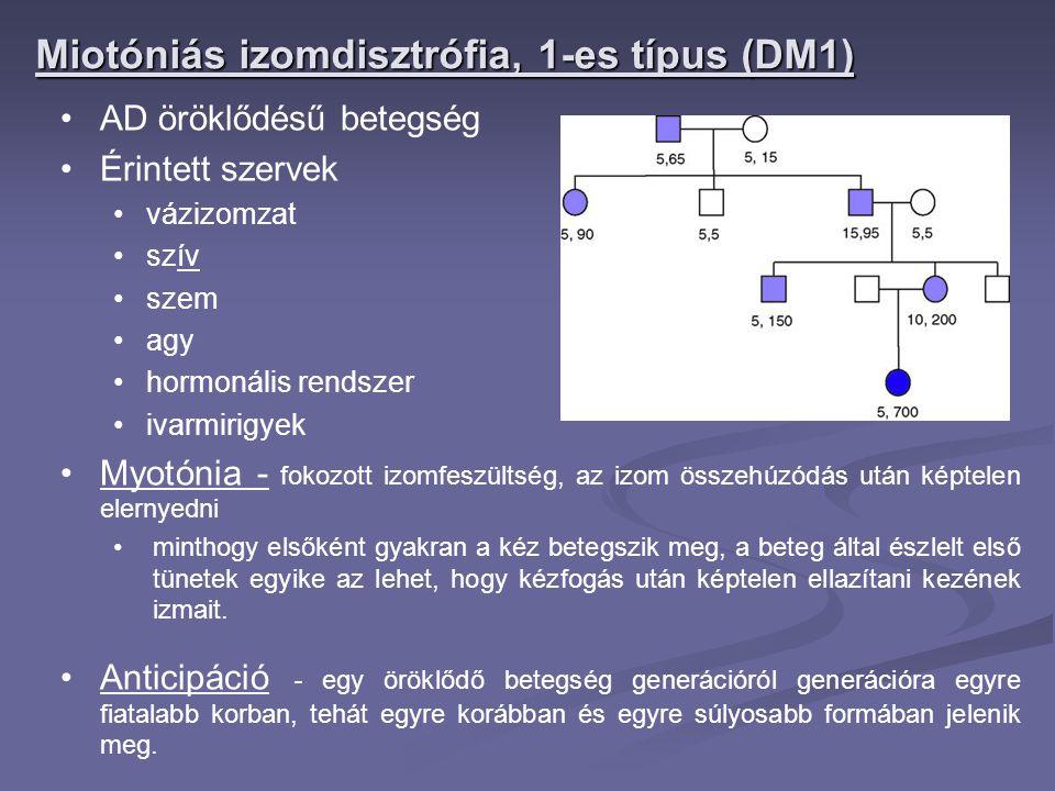 Miotóniás izomdisztrófia, 1-es típus (DM1)