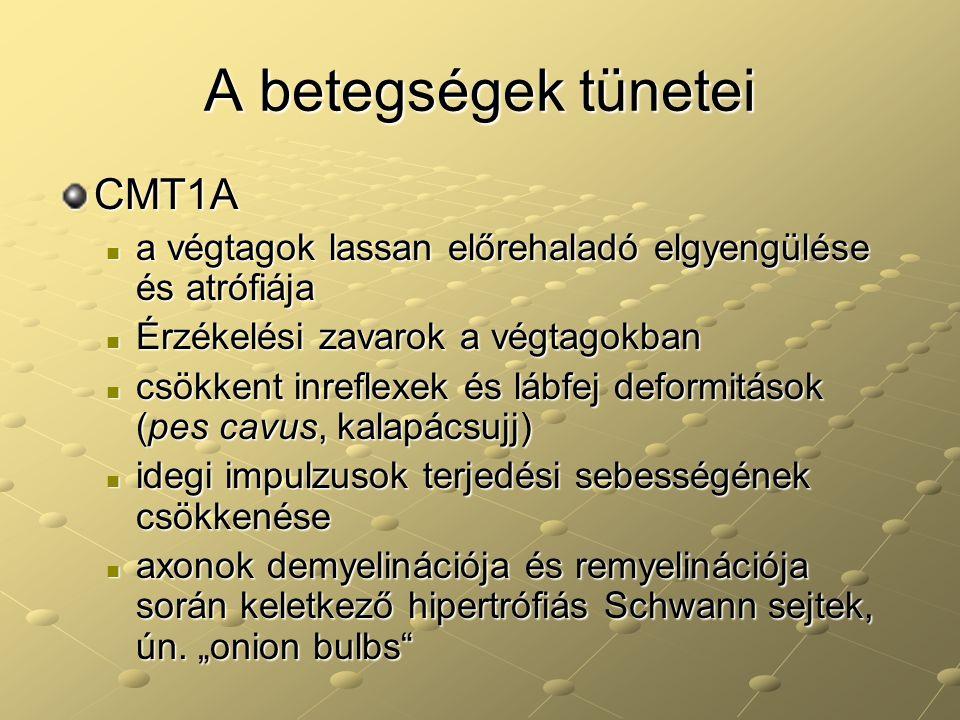 A betegségek tünetei CMT1A