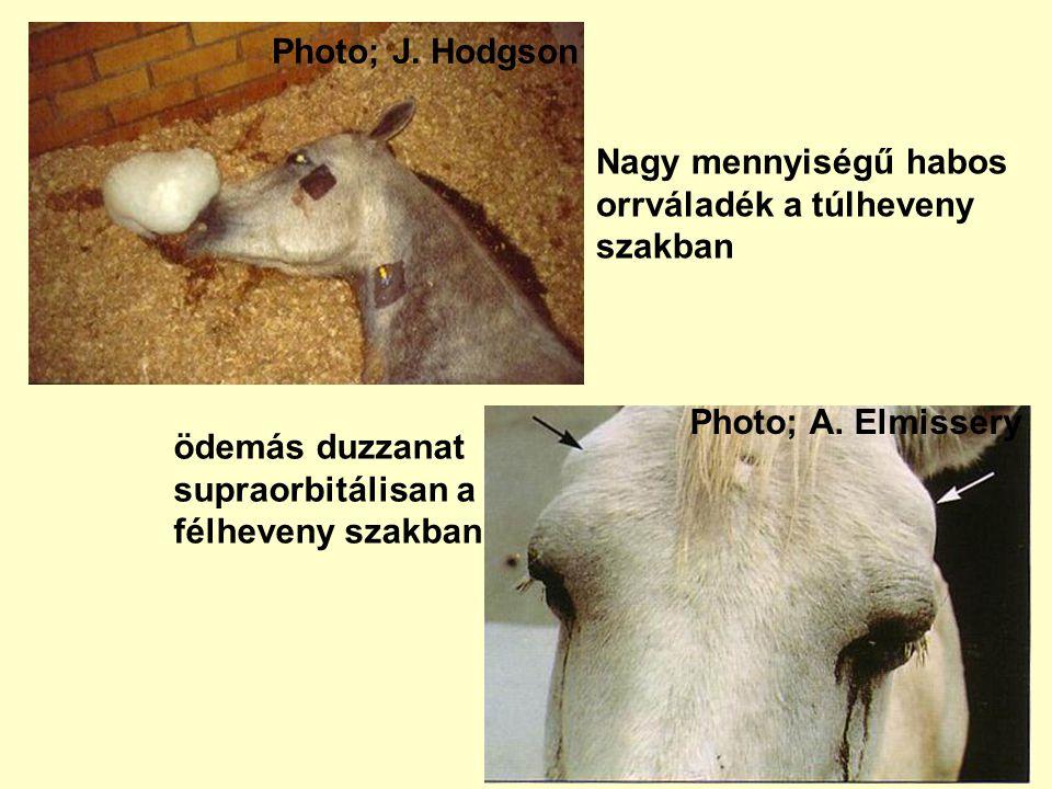 Photo; J. Hodgson Nagy mennyiségű habos. orrváladék a túlheveny. szakban. Photo; A. Elmissery. ödemás duzzanat.