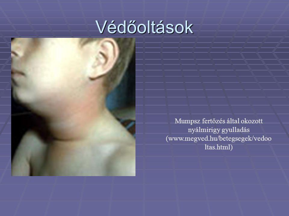 Mumpsz fertőzés által okozott nyálmirigy gyulladás