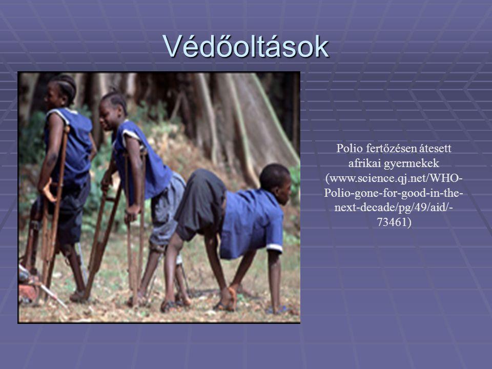 Polio fertőzésen átesett afrikai gyermekek