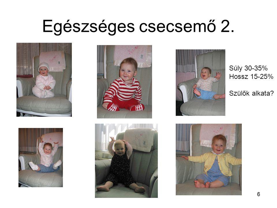 Egészséges csecsemő 2. Súly 30-35% Hossz 15-25% Szülők alkata