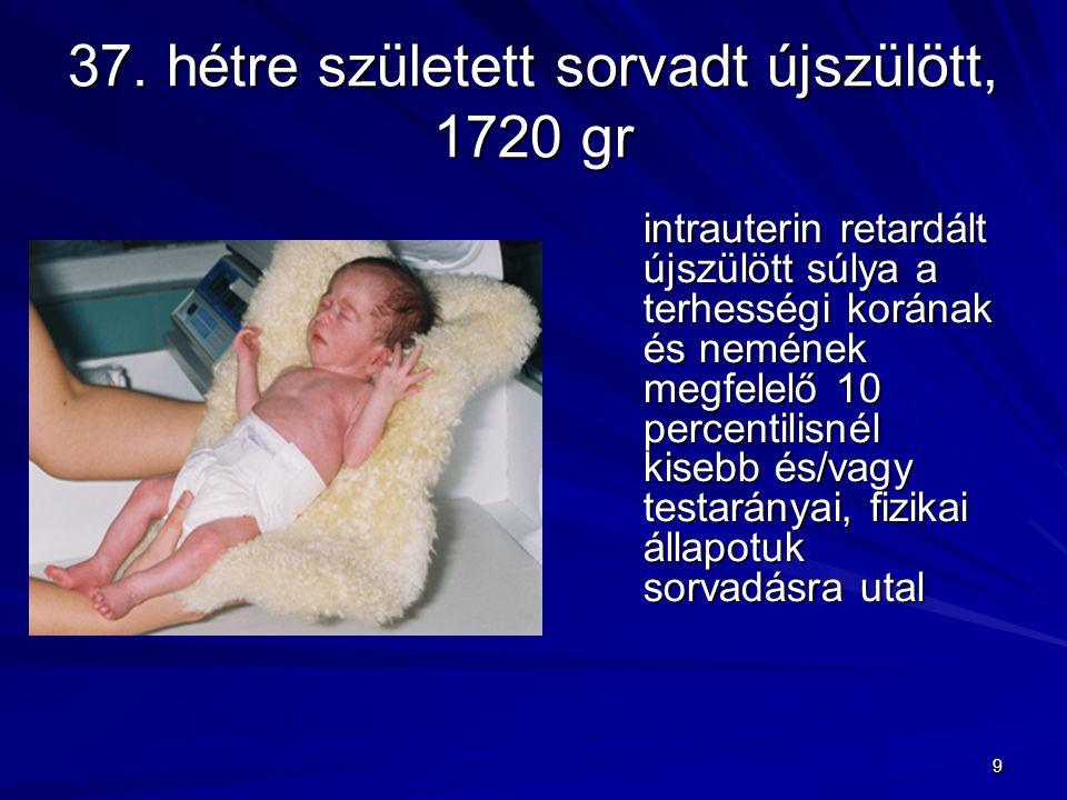37. hétre született sorvadt újszülött, 1720 gr