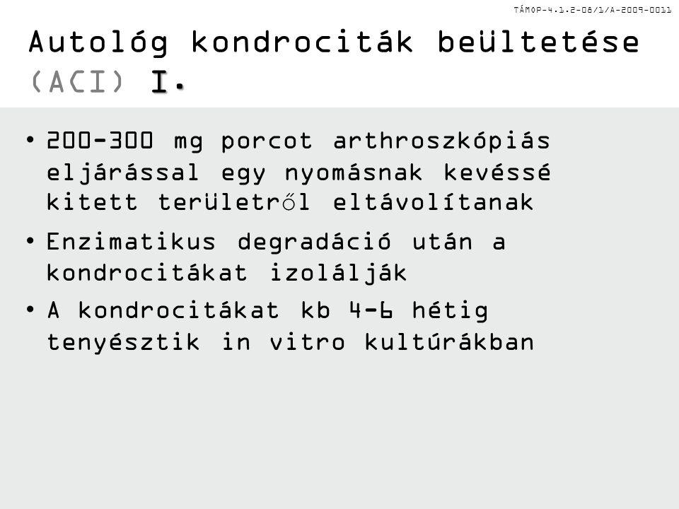 Autológ kondrociták beültetése (ACI) I.