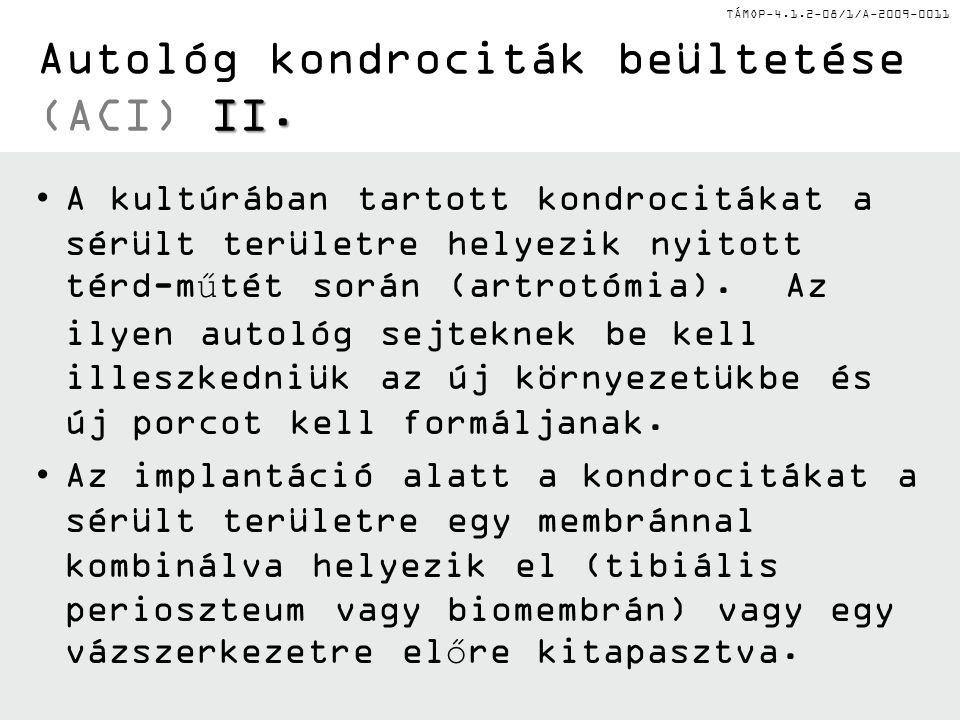 Autológ kondrociták beültetése (ACI) II.