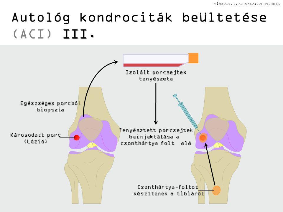 Autológ kondrociták beültetése (ACI) III.