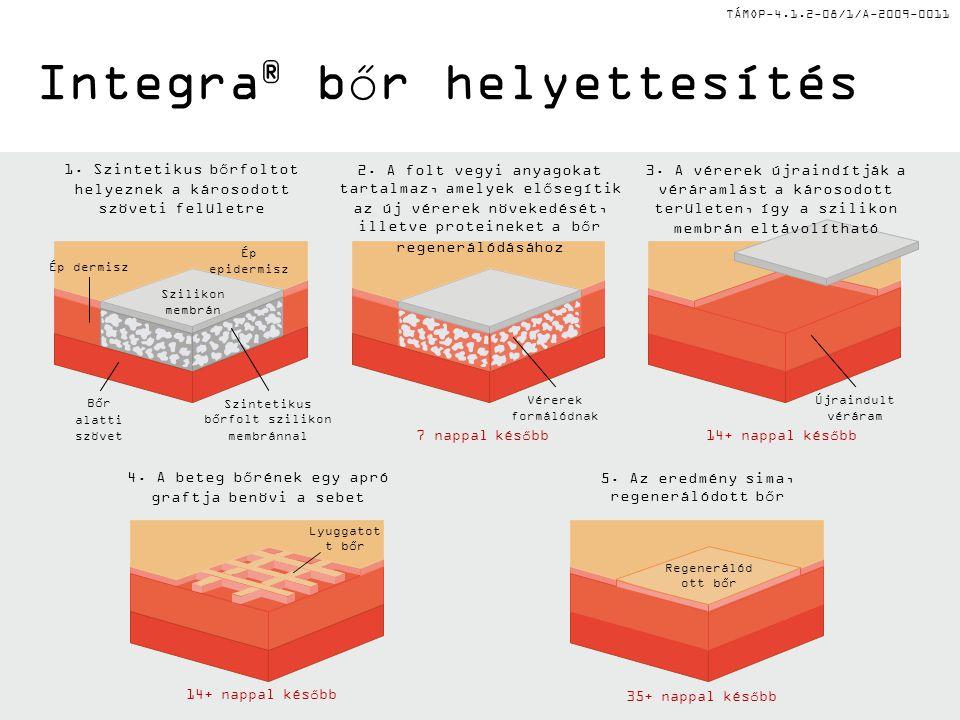 Integra® bőr helyettesítés