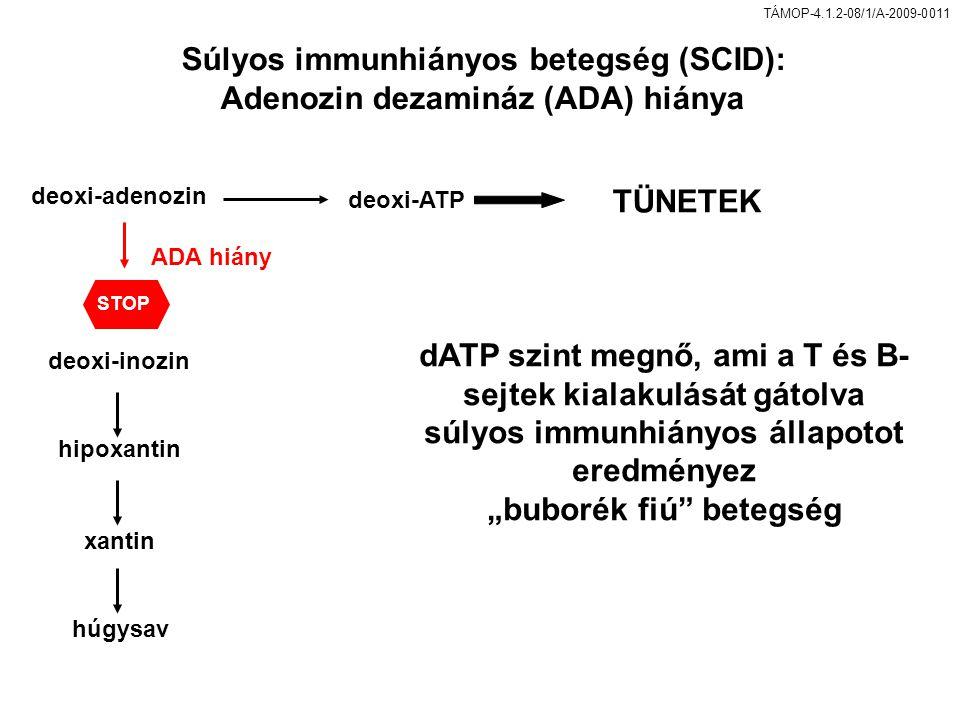 Súlyos immunhiányos betegség (SCID): Adenozin dezamináz (ADA) hiánya