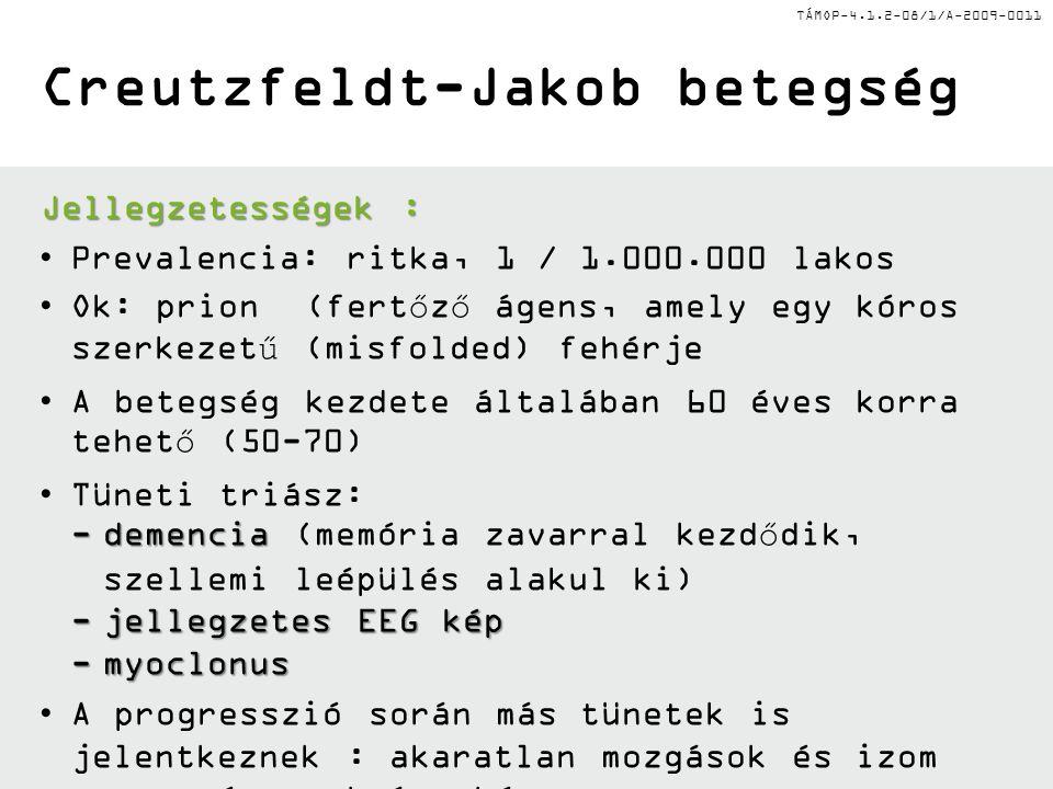 Creutzfeldt-Jakob betegség