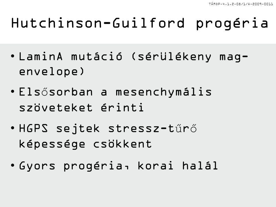 Hutchinson-Guilford progéria