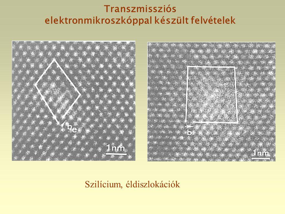 Transzmissziós elektronmikroszkóppal készült felvételek