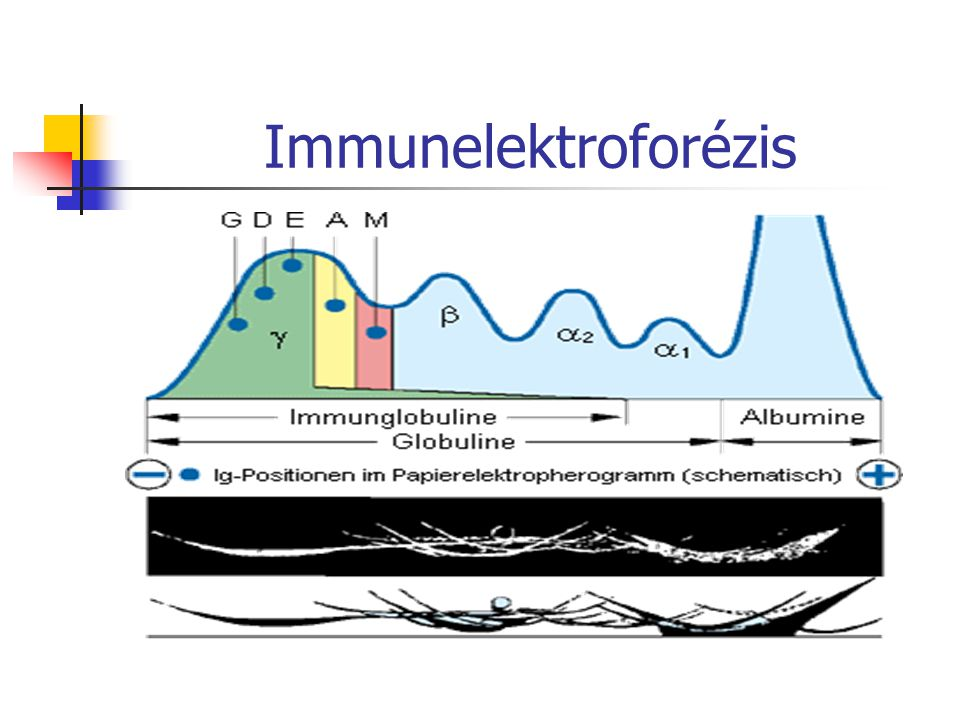 Immunelektroforézis