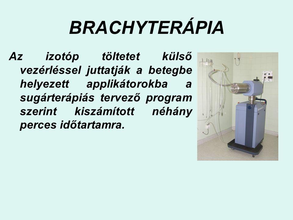 BRACHYTERÁPIA