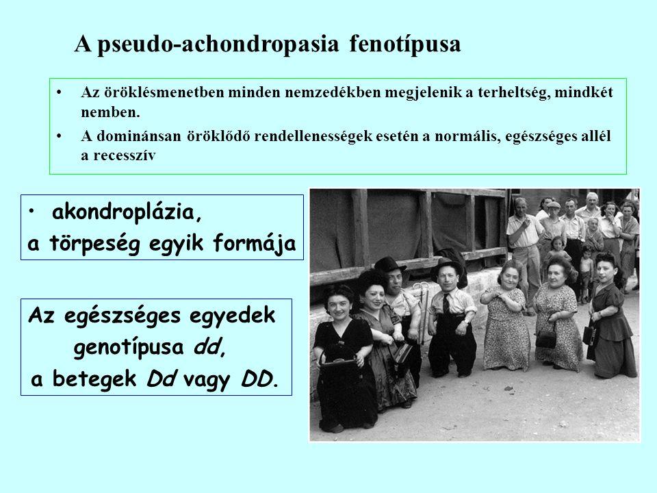A pseudo-achondropasia fenotípusa