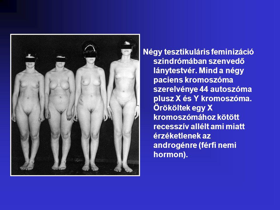 Négy tesztikuláris feminizáció szindrómában szenvedő lánytestvér