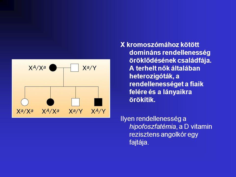 X kromoszómához kötött domináns rendellenesség öröklődésének családfája. A terhelt nők általában heterozigóták, a rendellenességet a fiaik felére és a lányaikra örökítik.