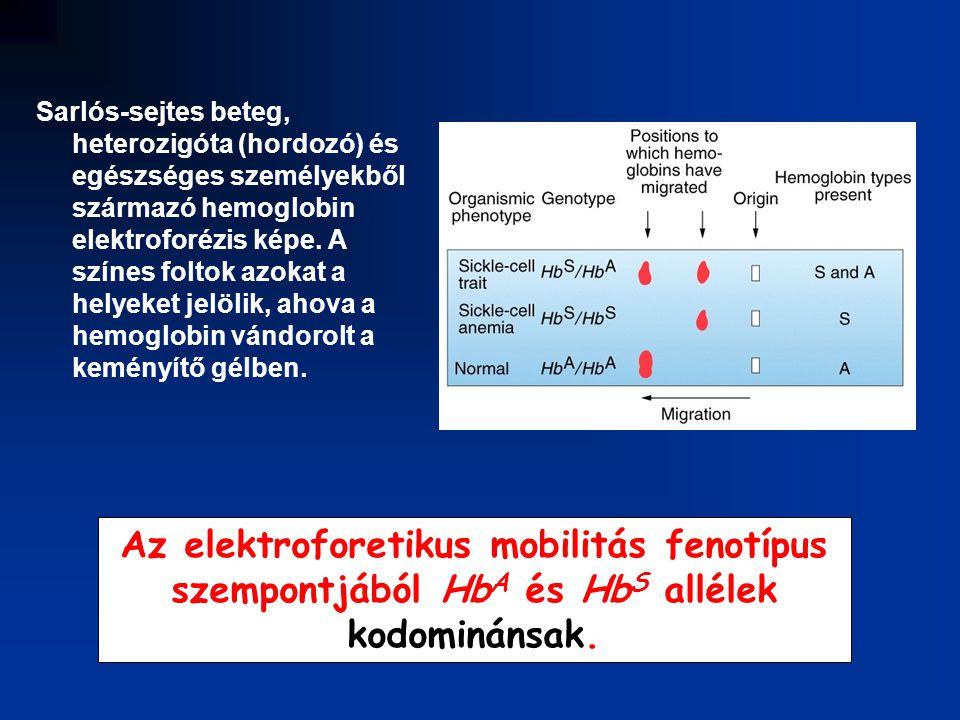 Sarlós-sejtes beteg, heterozigóta (hordozó) és egészséges személyekből származó hemoglobin elektroforézis képe. A színes foltok azokat a helyeket jelölik, ahova a hemoglobin vándorolt a keményítő gélben.