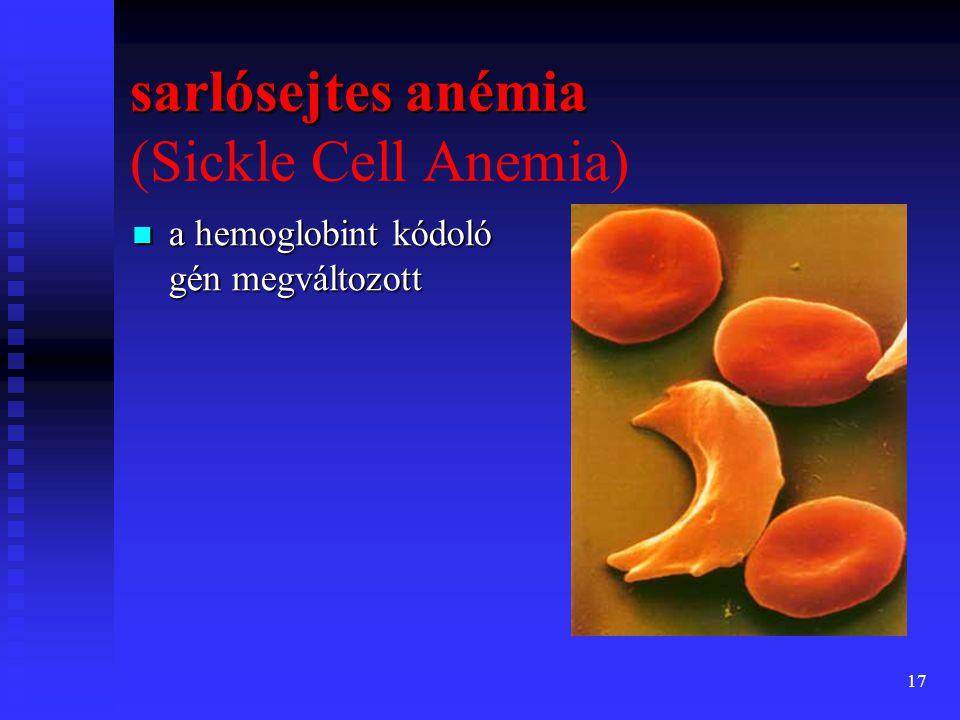 sarlósejtes anémia (Sickle Cell Anemia)