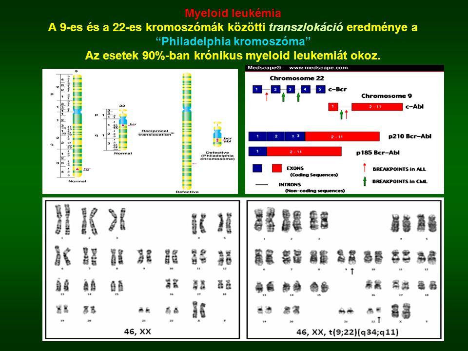 Myeloid leukémia A 9-es és a 22-es kromoszómák közötti transzlokáció eredménye a Philadelphia kromoszóma Az esetek 90%-ban krónikus myeloid leukemiát okoz.
