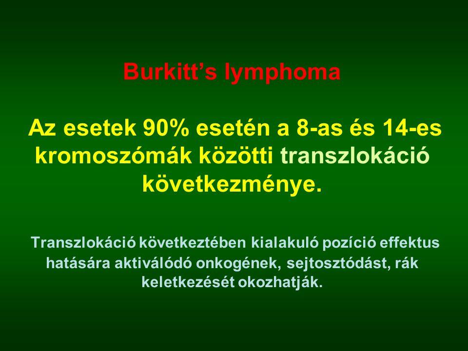 Burkitt's lymphoma Az esetek 90% esetén a 8-as és 14-es kromoszómák közötti transzlokáció következménye.
