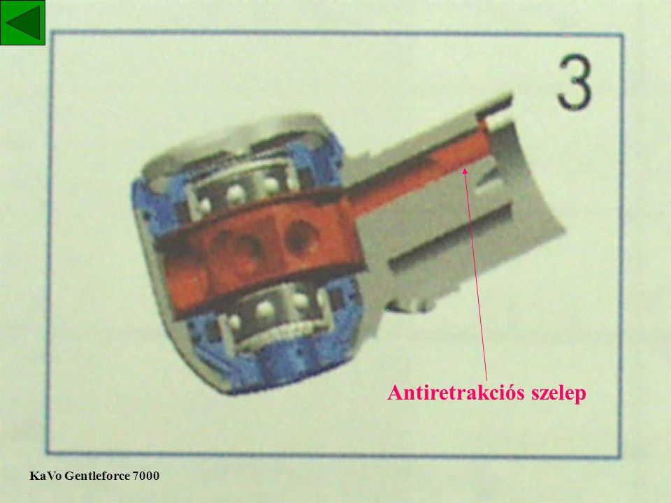 Antiretrakciós szelep