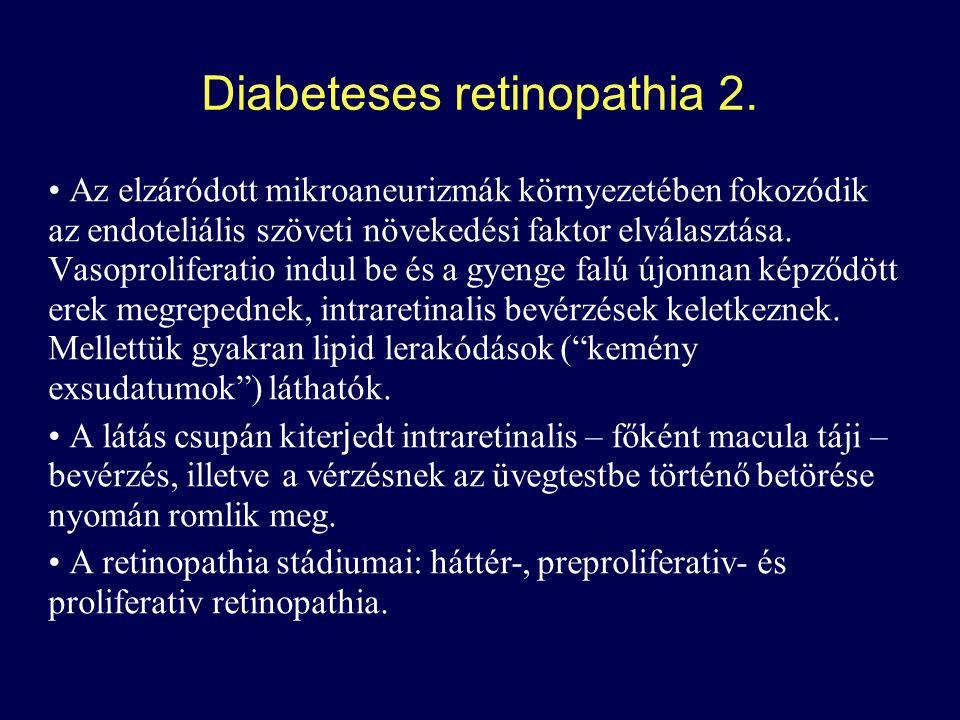 Diabeteses retinopathia 2.