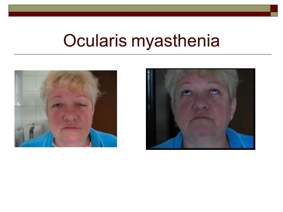 Ocularis myasthenia