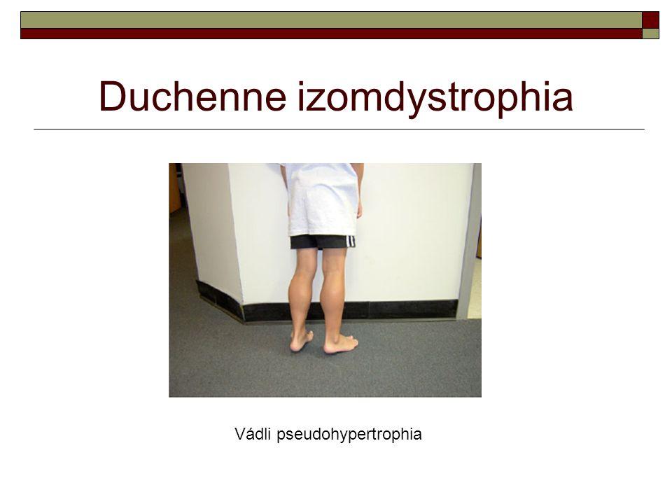 Duchenne izomdystrophia