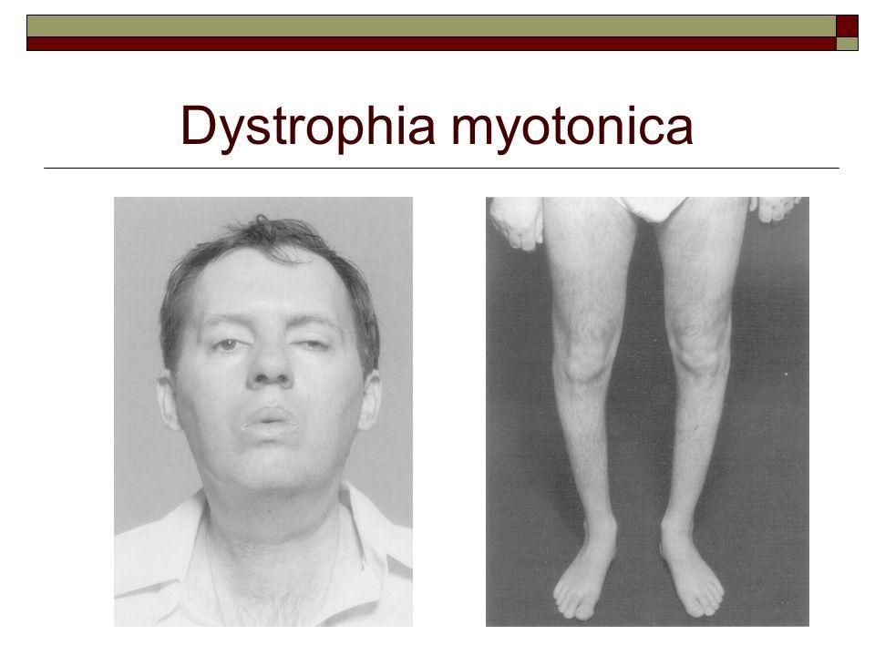 Dystrophia myotonica