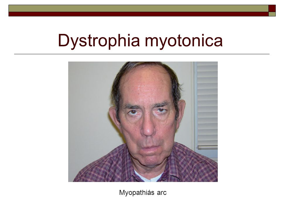 Dystrophia myotonica Myopathiás arc