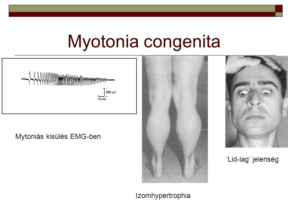 Myotonia congenita Mytoniás kisülés EMG-ben 'Lid-lag' jelenség