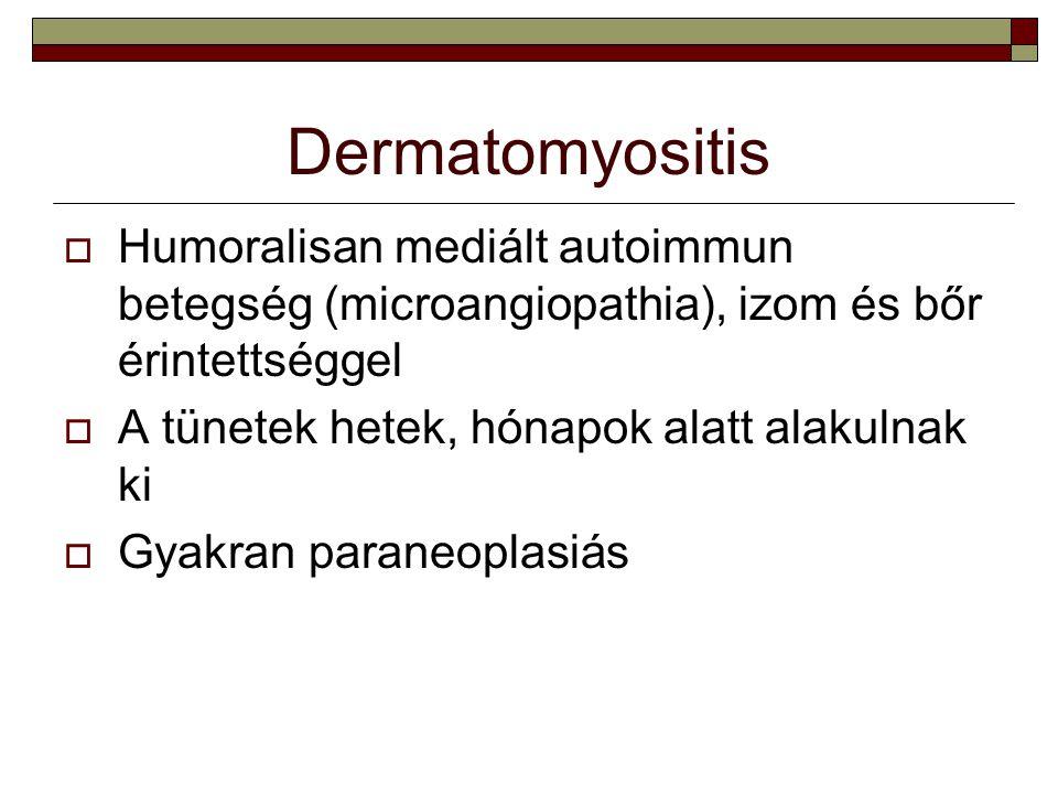 Dermatomyositis Humoralisan mediált autoimmun betegség (microangiopathia), izom és bőr érintettséggel.