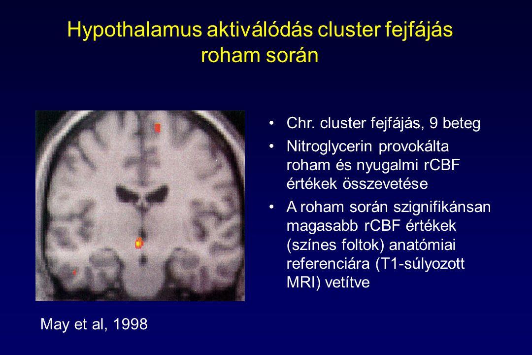 Hypothalamus aktiválódás cluster fejfájás roham során