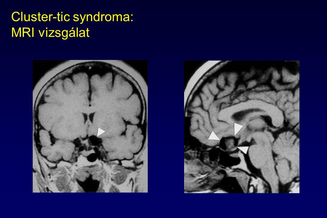 Cluster-tic syndroma: MRI vizsgálat