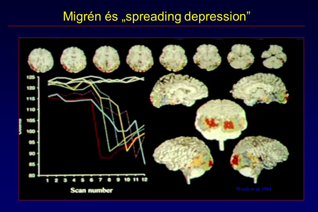 "Migrén és ""spreading depression"