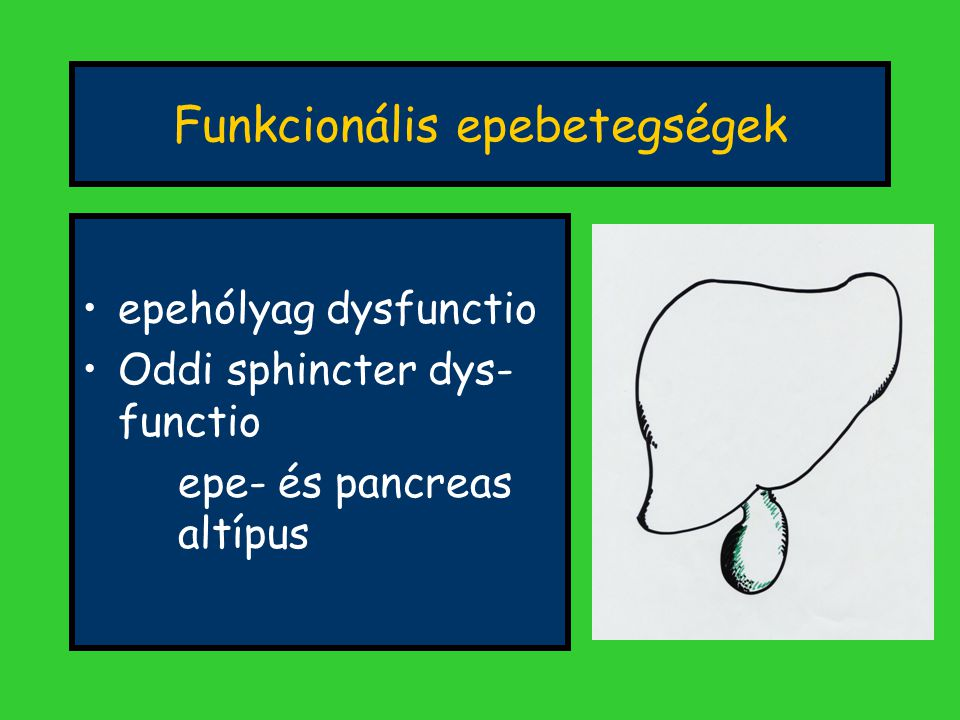 Funkcionális epebetegségek