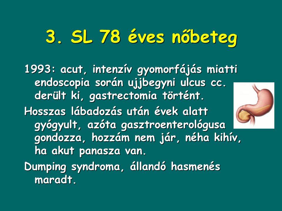 3. SL 78 éves nőbeteg 1993: acut, intenzív gyomorfájás miatti endoscopia során ujjbegyni ulcus cc. derült ki, gastrectomia történt.