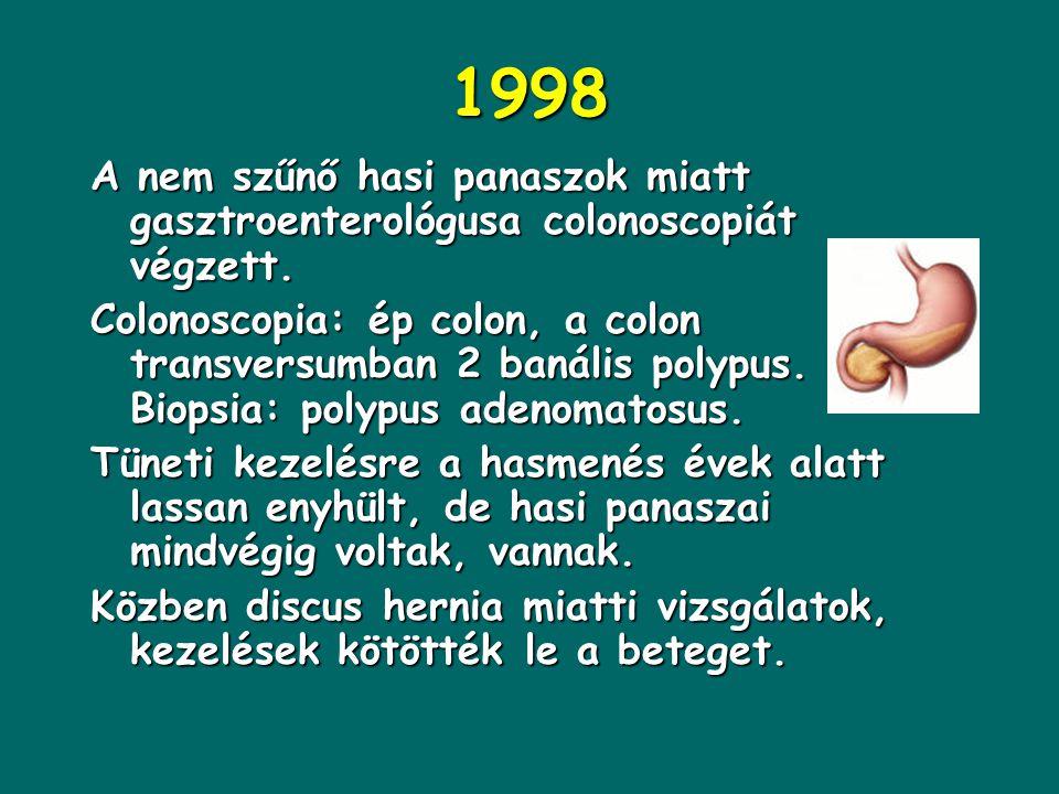 1998 A nem szűnő hasi panaszok miatt gasztroenterológusa colonoscopiát végzett.