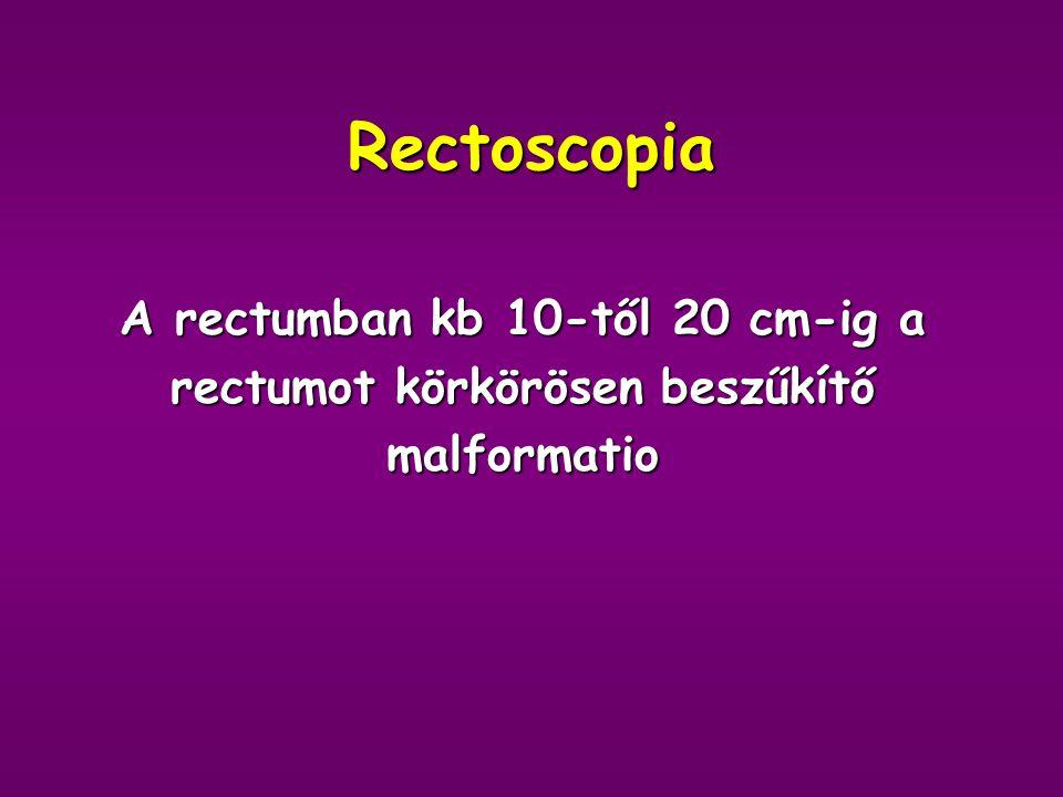 A rectumban kb 10-től 20 cm-ig a rectumot körkörösen beszűkítő