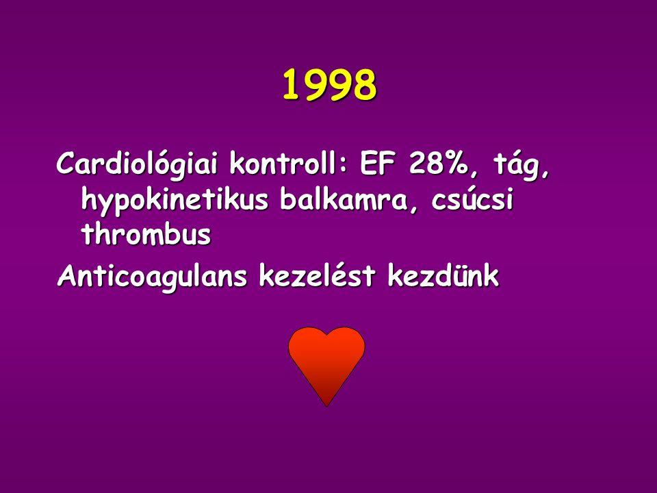 1998 Cardiológiai kontroll: EF 28%, tág, hypokinetikus balkamra, csúcsi thrombus.