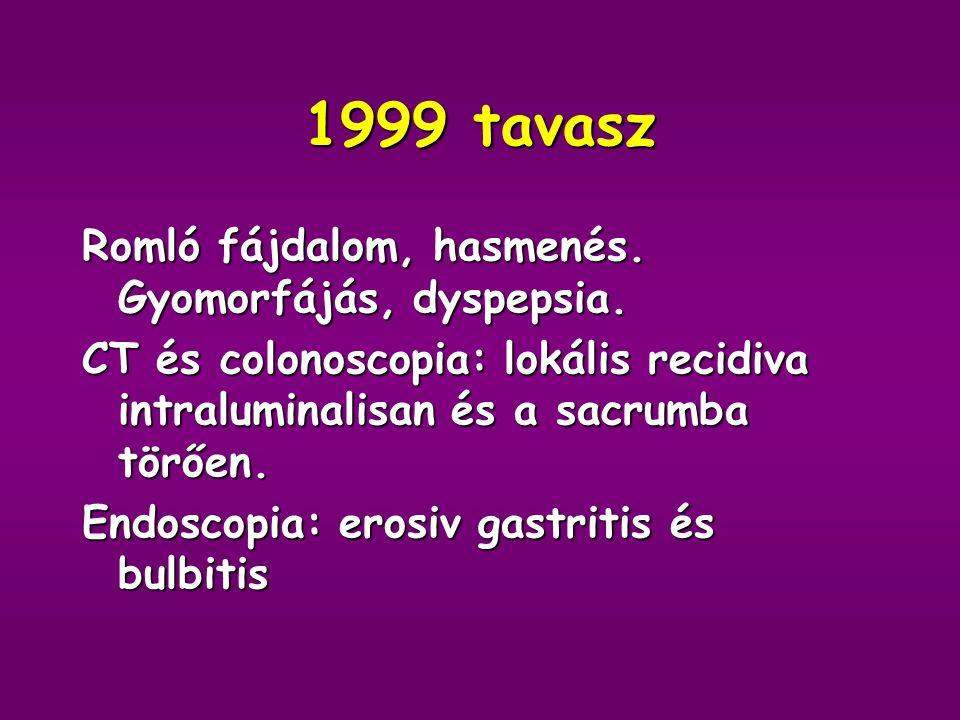 1999 tavasz Romló fájdalom, hasmenés. Gyomorfájás, dyspepsia.