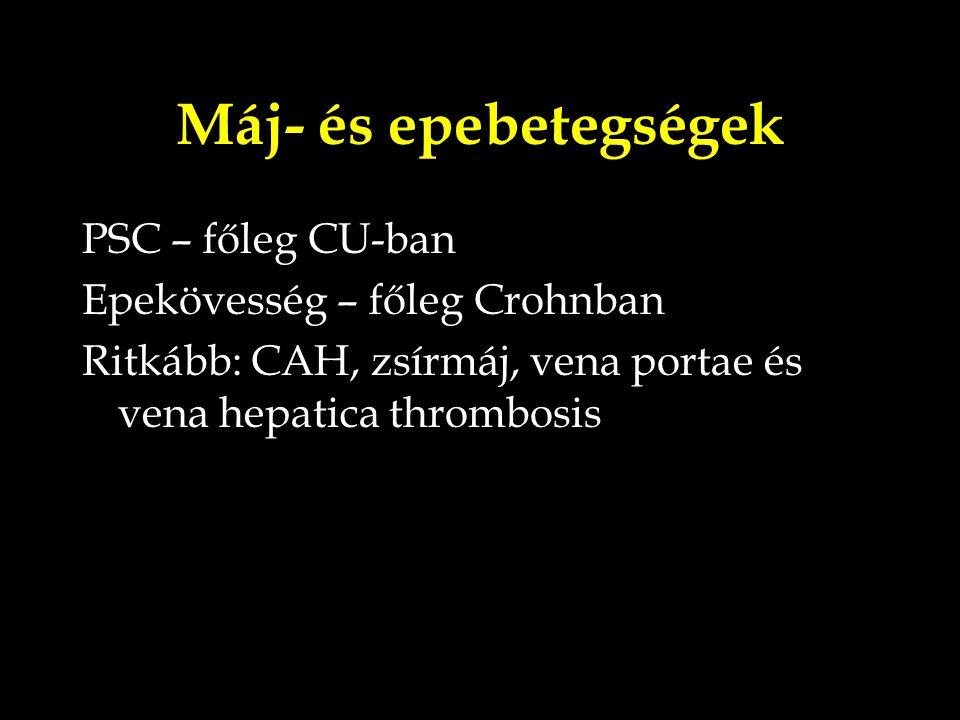 Máj- és epebetegségek PSC – főleg CU-ban Epekövesség – főleg Crohnban