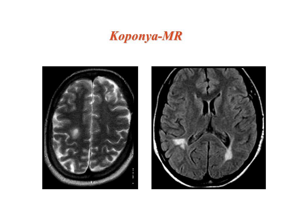 Koponya-MR