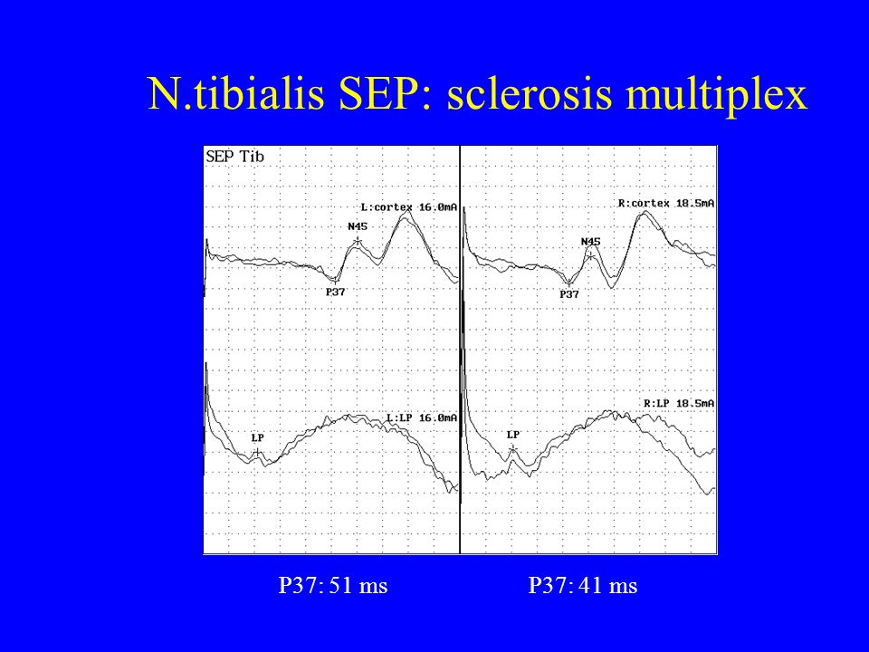 N.tibialis SEP: sclerosis multiplex
