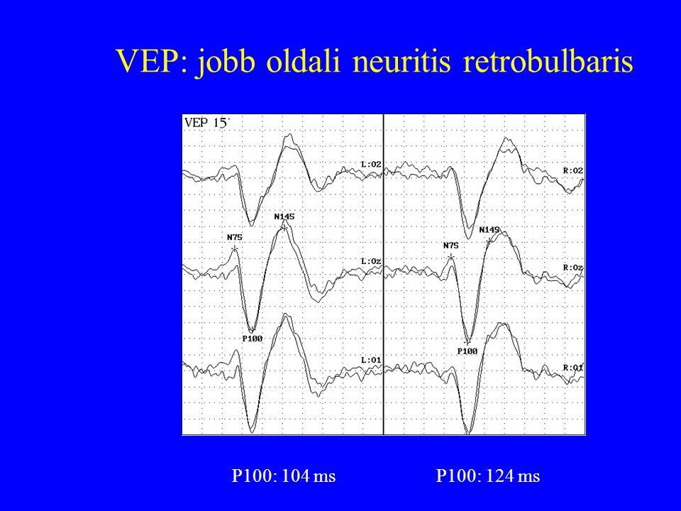 VEP: jobb oldali neuritis retrobulbaris