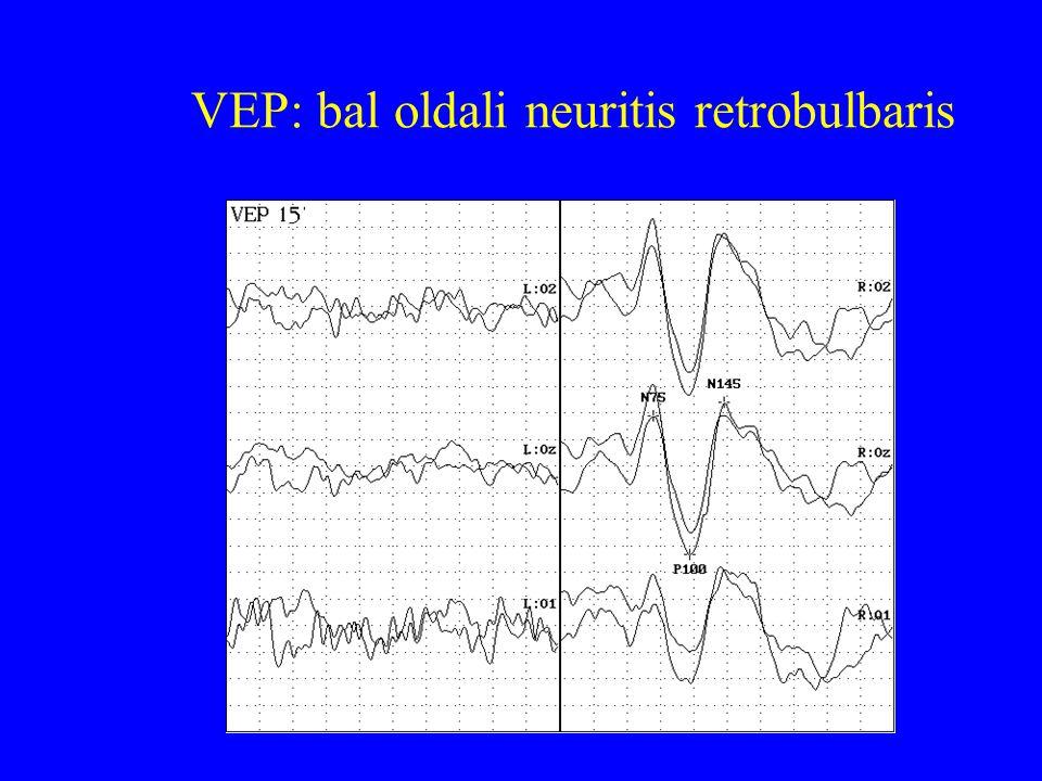 VEP: bal oldali neuritis retrobulbaris