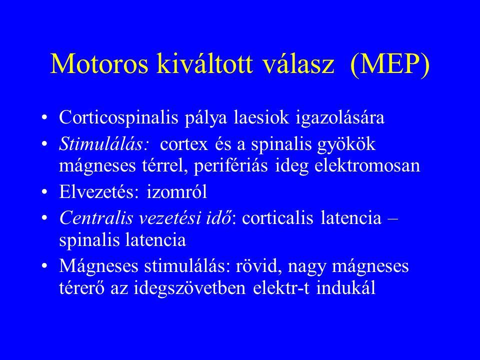 Motoros kiváltott válasz (MEP)
